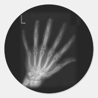Adesivo Mão esquerda extra do raio X do dígito