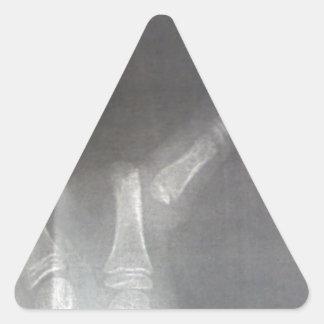 Adesivo Triangular Raio X