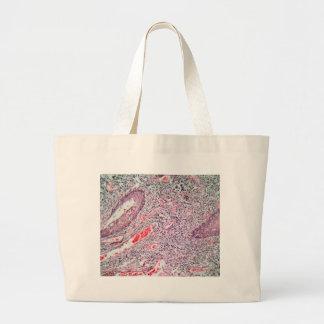 Bolsa Tote Grande Pilhas do tecido de uma cerviz humana com cancer