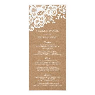 Cartão Menu rústico do casamento do casamento do laço do