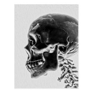 Cartão Postal Crânio do raio X