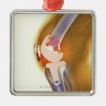 Substituição do joelho. Raio X colorido de um joel Ornamento