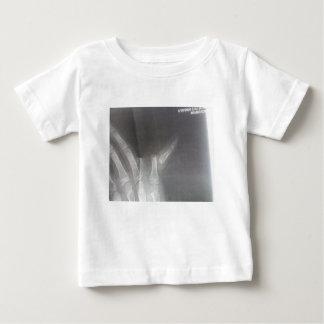 T-shirts Raio X