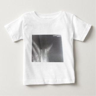 Tshirts Raio X