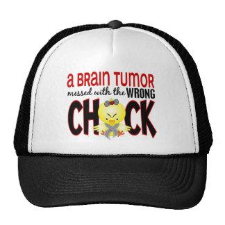 Tumor cerebral sujado com o pintinho errado bone